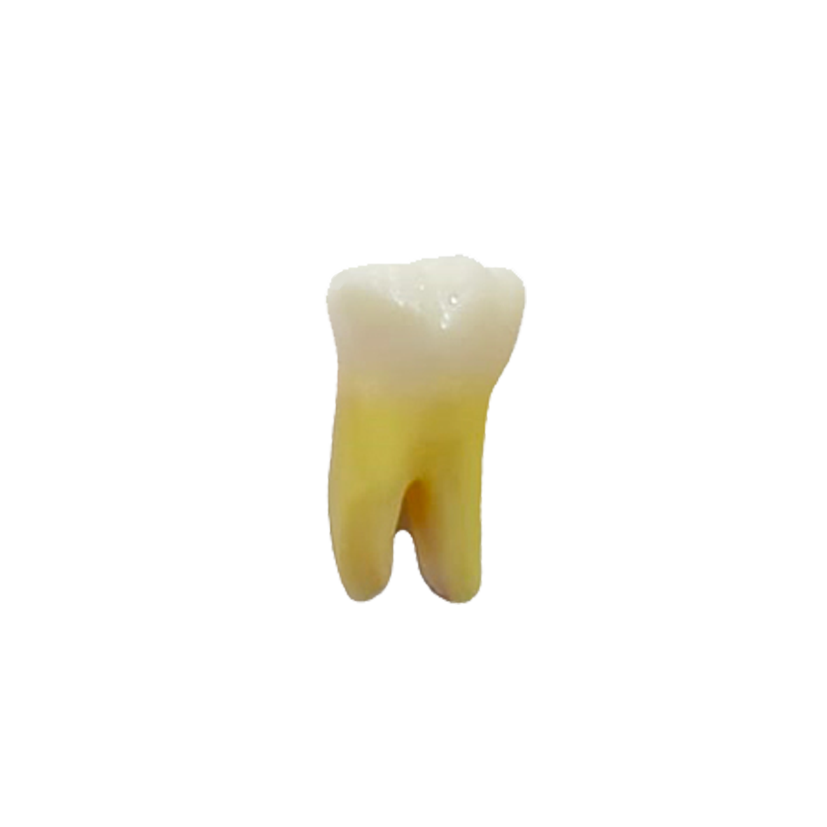 1° Molar Inferior ​