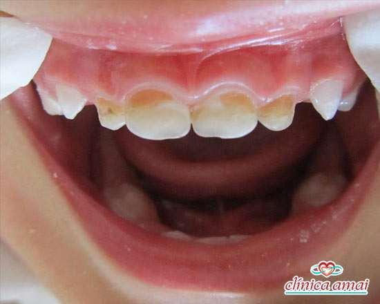 Manchas amareladas de cáries em dentes de leite. Veja a separação, quando as manchas brancas tornam-se cáries.