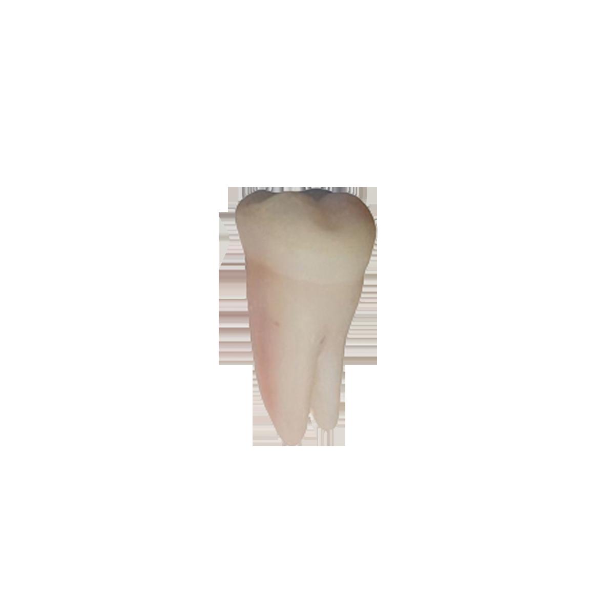 2° molar inferior