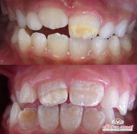 Manchas generalizadas em dentes permanentes, que não estavam presentes na dentição decídua