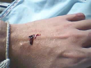 Estigma da mão esquerda do ir.Eduardo