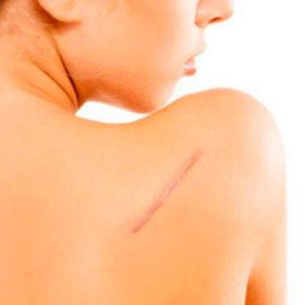 Manejo de Cicatrices