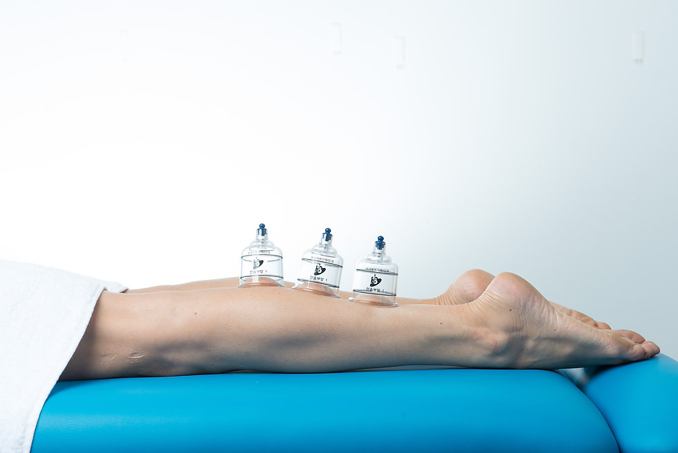 Cupping in Perth; Perth myofascial cupping therapist; cupping theapist in Melville