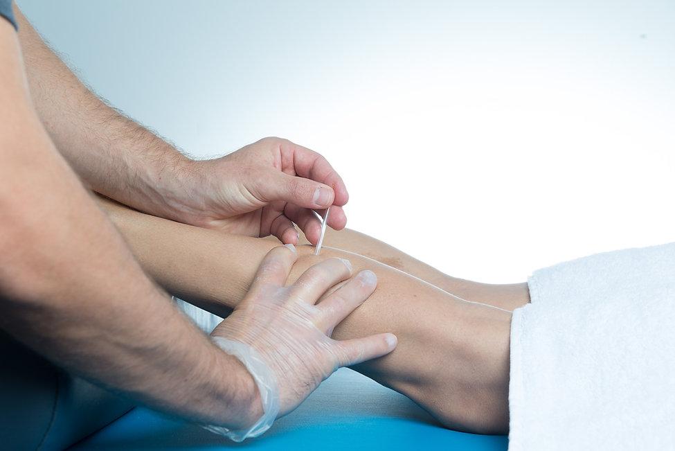 Dry needling Perth; remedial massage Perth