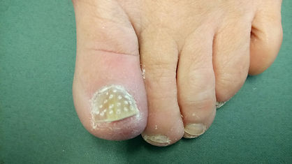 Fenestrate toe nails for fungal infections