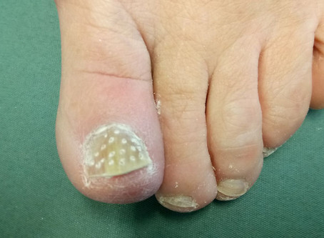 An Effective Fungal Nail Treatment