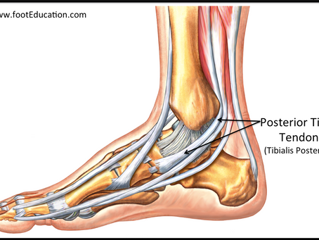 Tibialis Posterior Tendinopathy - Pain around inside ankle bone