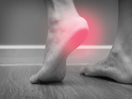 Tips for Plantar Fasciitis (Heel Pain)