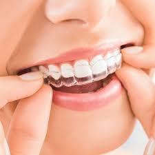 7 wichtige Informationen zu Invisalign, der nahezu unsichtbaren Zahnspange.