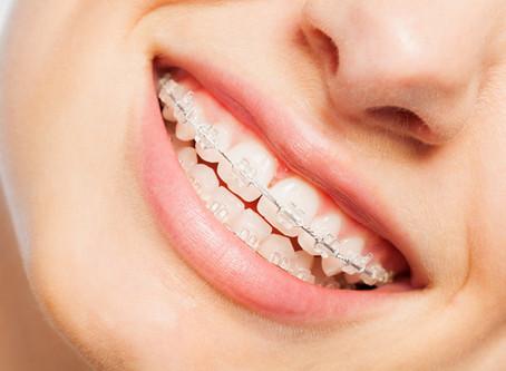 7 Tipps für diejenigen, die feste Zahnspangen verwenden