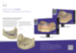 exocad_brochure_DentalCAD_pt_screen-08.p