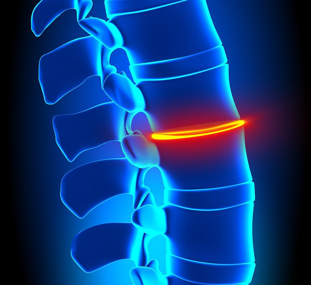 椎間板が潰されないように、自分を使って。