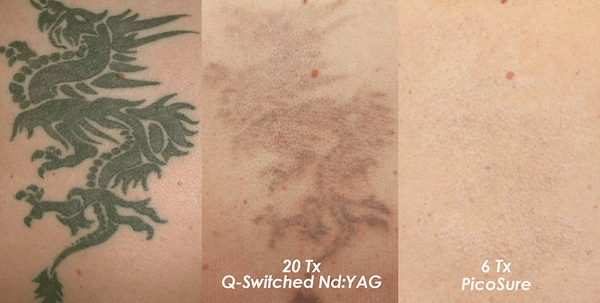 tattoo removal picosure