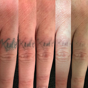 milwaukee tattoo removal before after