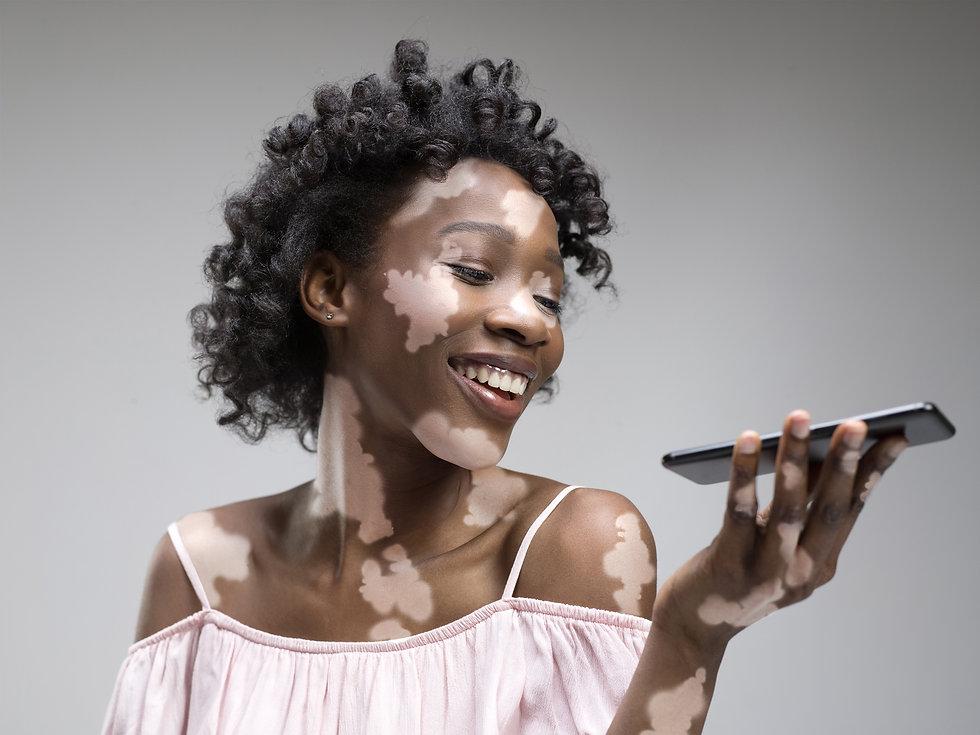 vitiligo convo.jpeg