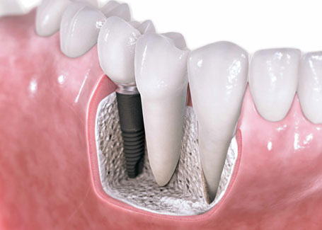 single-tooth-dental-implant