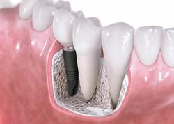 single-tooth-dental-implant