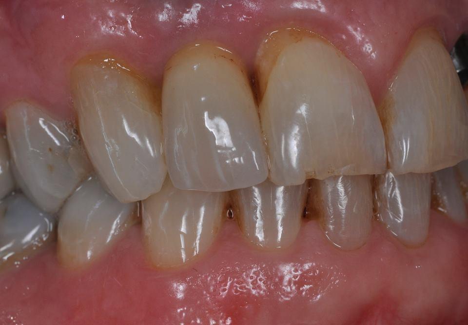 implant crown