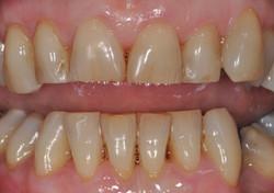 After dental hygiene