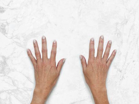 Bridget Hands Clinical Before.jpg