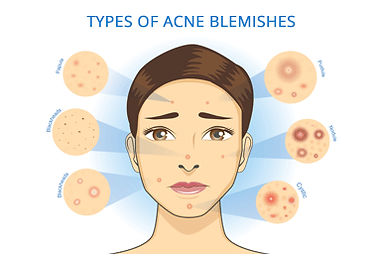is-it-really-acne-landing-page-acne-sign