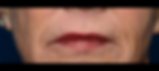 Denis Branson Mouth Before.png