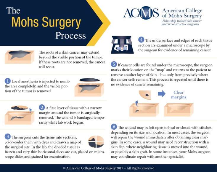 ACMS-Mohs-Surgery-Process-Infographic-Sq