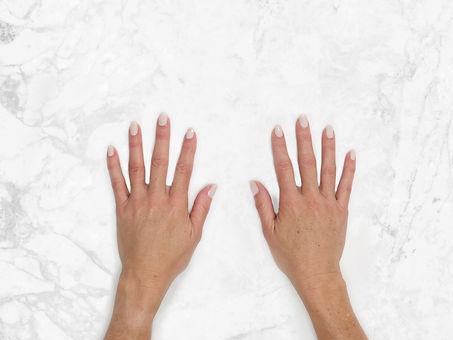 Bridget Hands Clinical After.jpg