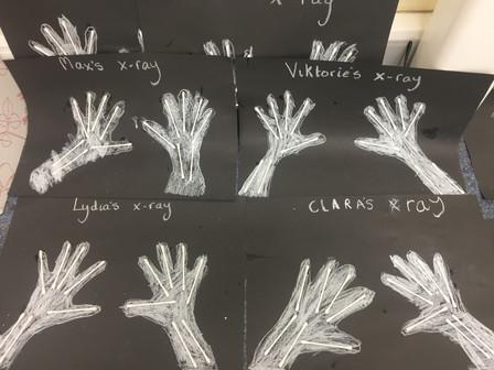 Autumn X-rays