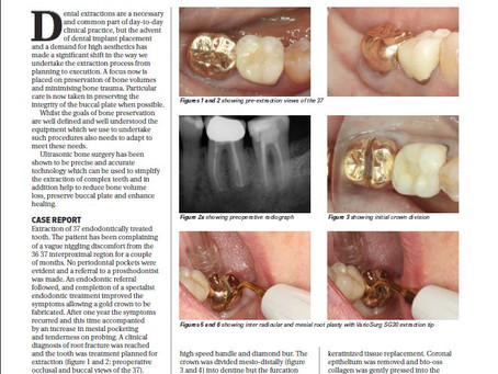 "Dr Mahnaz writes for ""Implant Dentistry Today"" for the April May 2019 edition"