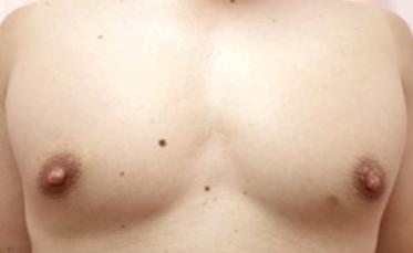 男性乳頭縮小・男性乳頭3.png