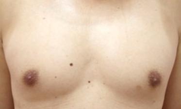 男性乳頭縮小・男性乳頭4.png