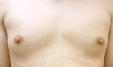 男性乳頭縮小・男性乳頭.png
