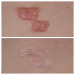 疤痕增生  冷凍治療 蟹足腫