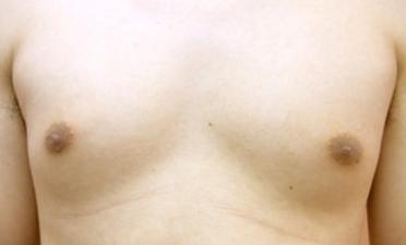男性乳頭縮小・男性乳頭2.png