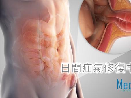 小腸氣手術日間完成 無需住院