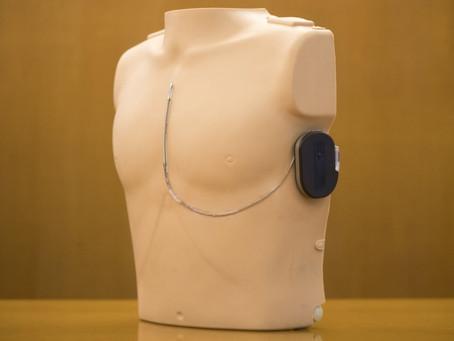 瑪麗醫院創新手術救4歲女童 腹部皮下裝心臟除顫器 成全球首宗