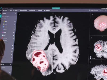 微軟也著力於醫療 AI,聯合阿波羅醫院開發心臟病診斷演算法,用於預測心臟疾病的風險,並協助醫生迅速找到相關治療方法。
