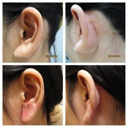 疤痕增生 耳