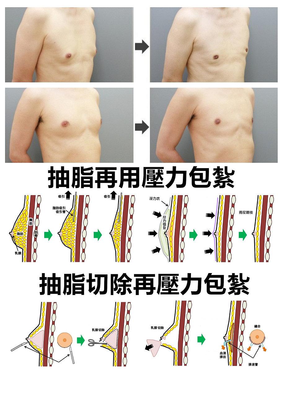 女乳症手術方法.jpg