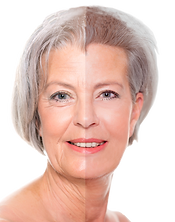 PRP Facial Facelift