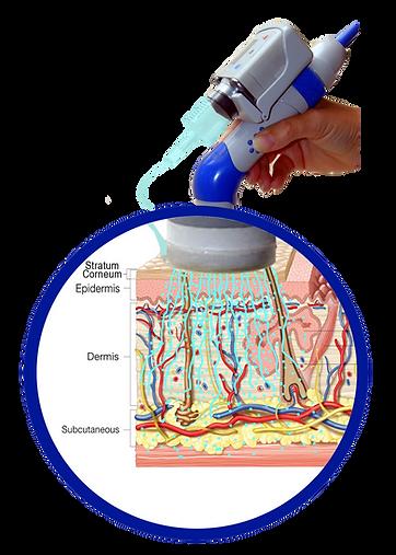 PRP electronic injection Dermoporatio