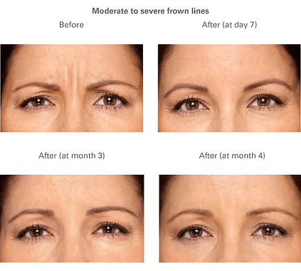 rederm-gallery-3.png