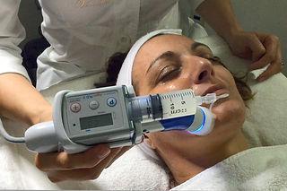Venus Derm PRP dermoelectroporation