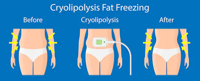 cryolipolysis coolsculpting.jpg
