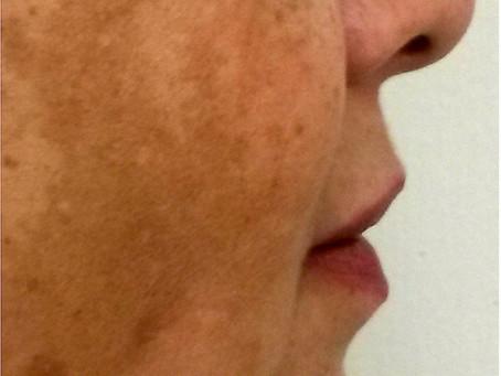 Dark Spots / Melasma