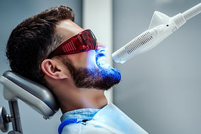Unrecognizable dentist whitening teeth o