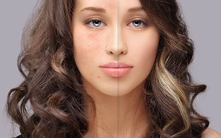 Post-Acne Marks /Treating Acne Scars.jpg