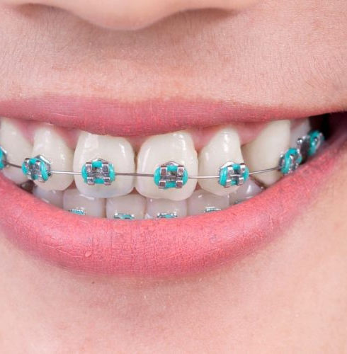 blue braces.jpeg