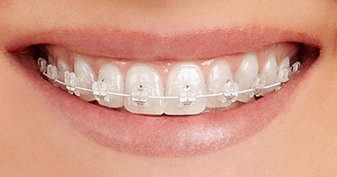 braces ceramic.jpg